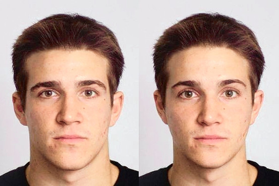 Как сделать лицо красивым у мужчин 78