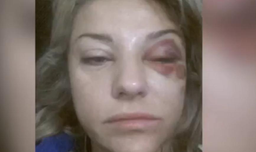 Избиение жены секс фото