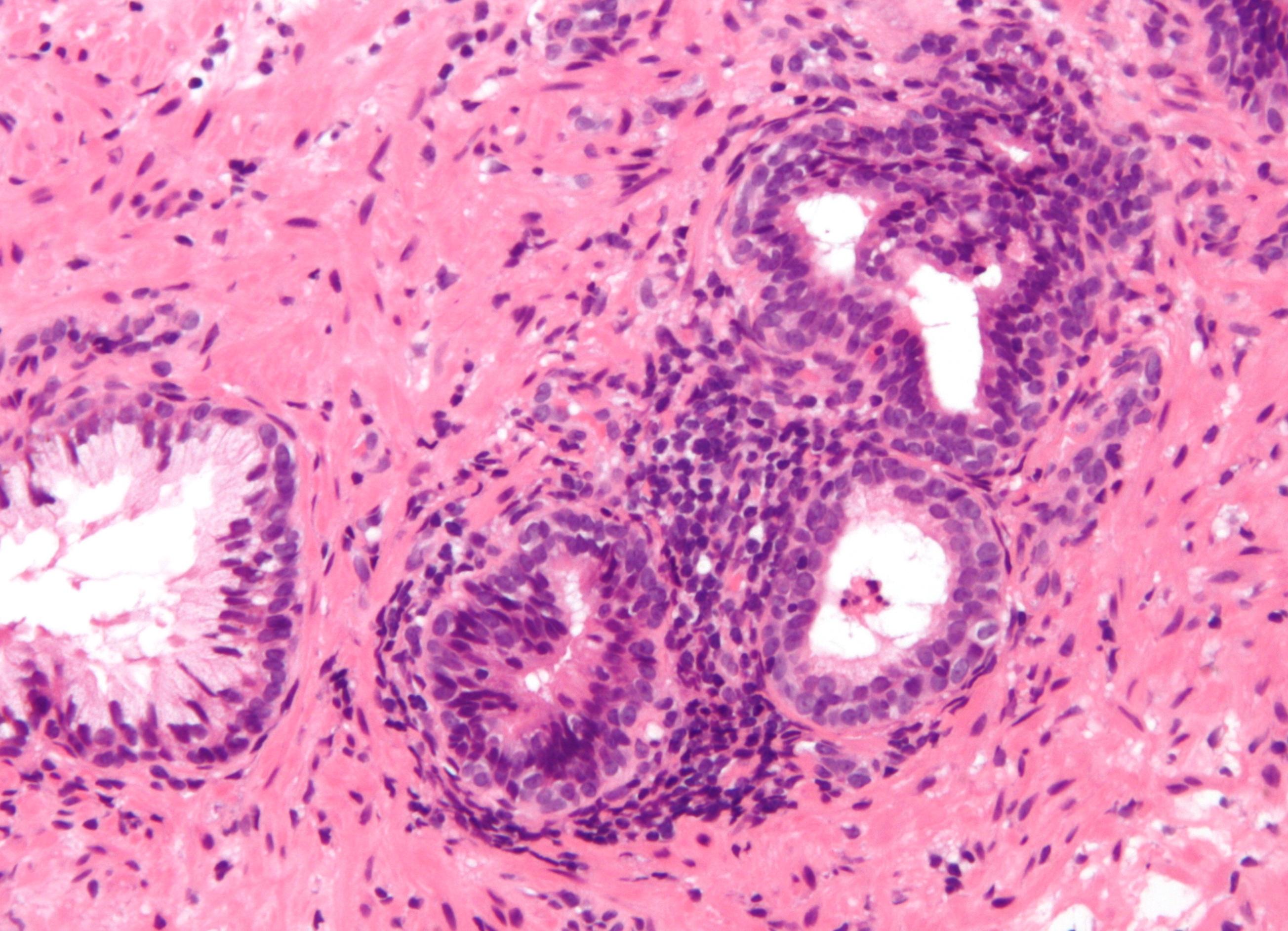 Простатит микоплазмоз нет беременности простатит